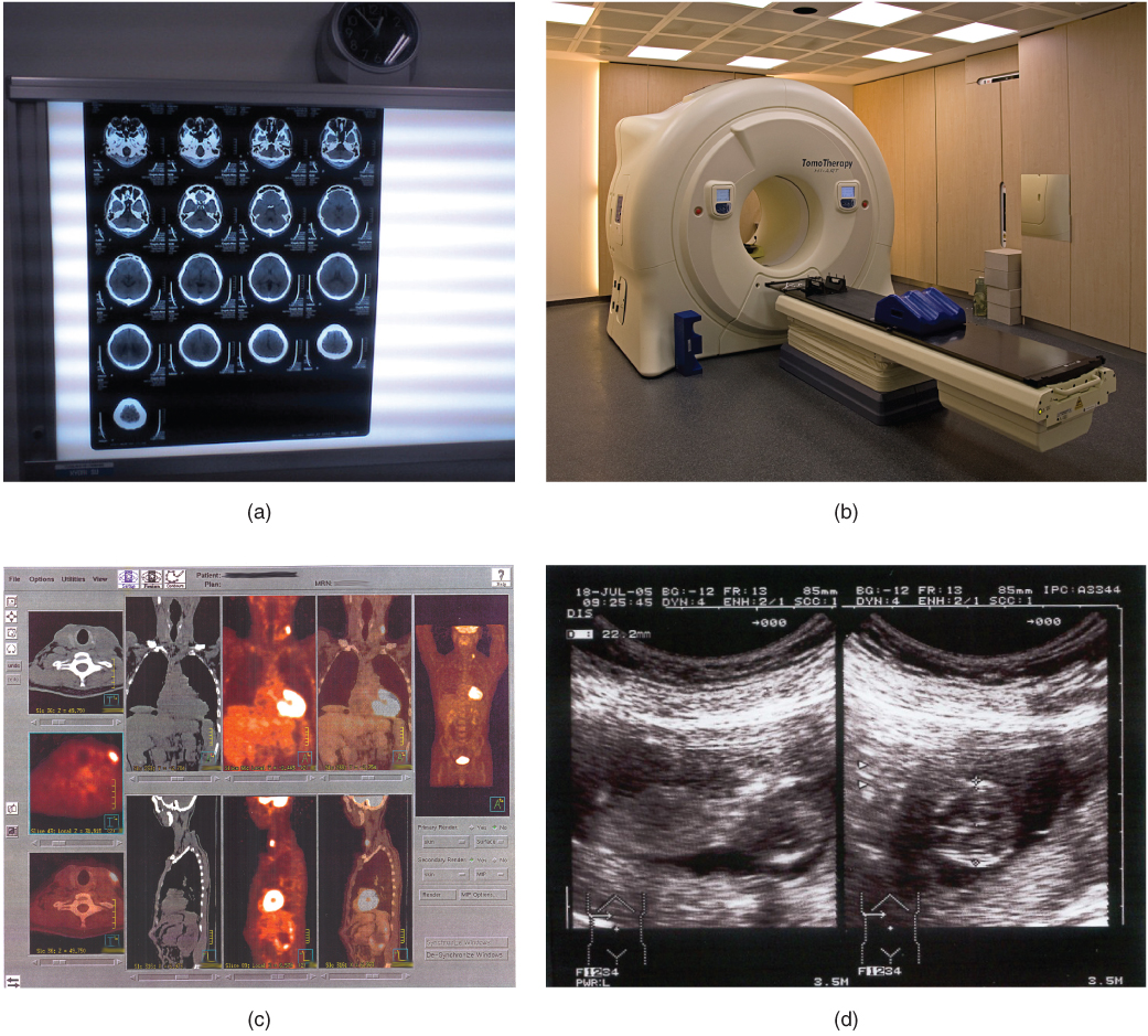 different parts of mri machine