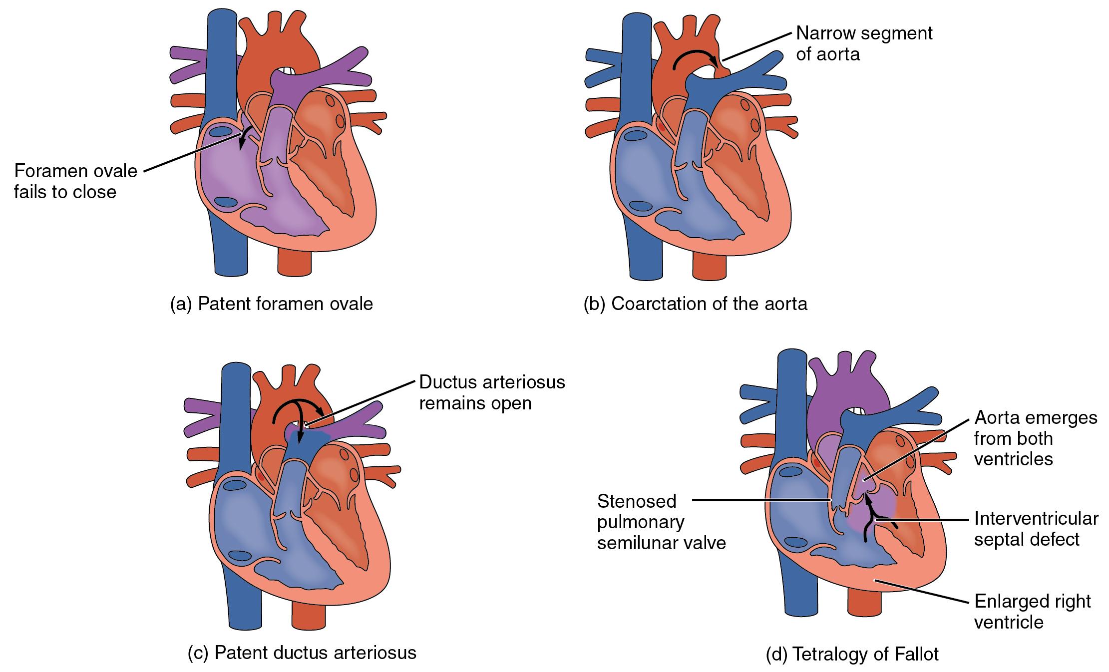 Heart Anatomy · Anatomy and Physiology
