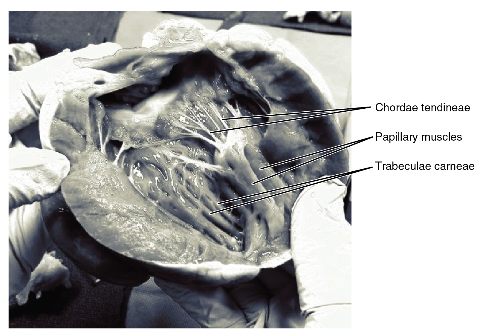 Heart Anatomy Anatomy And Physiology