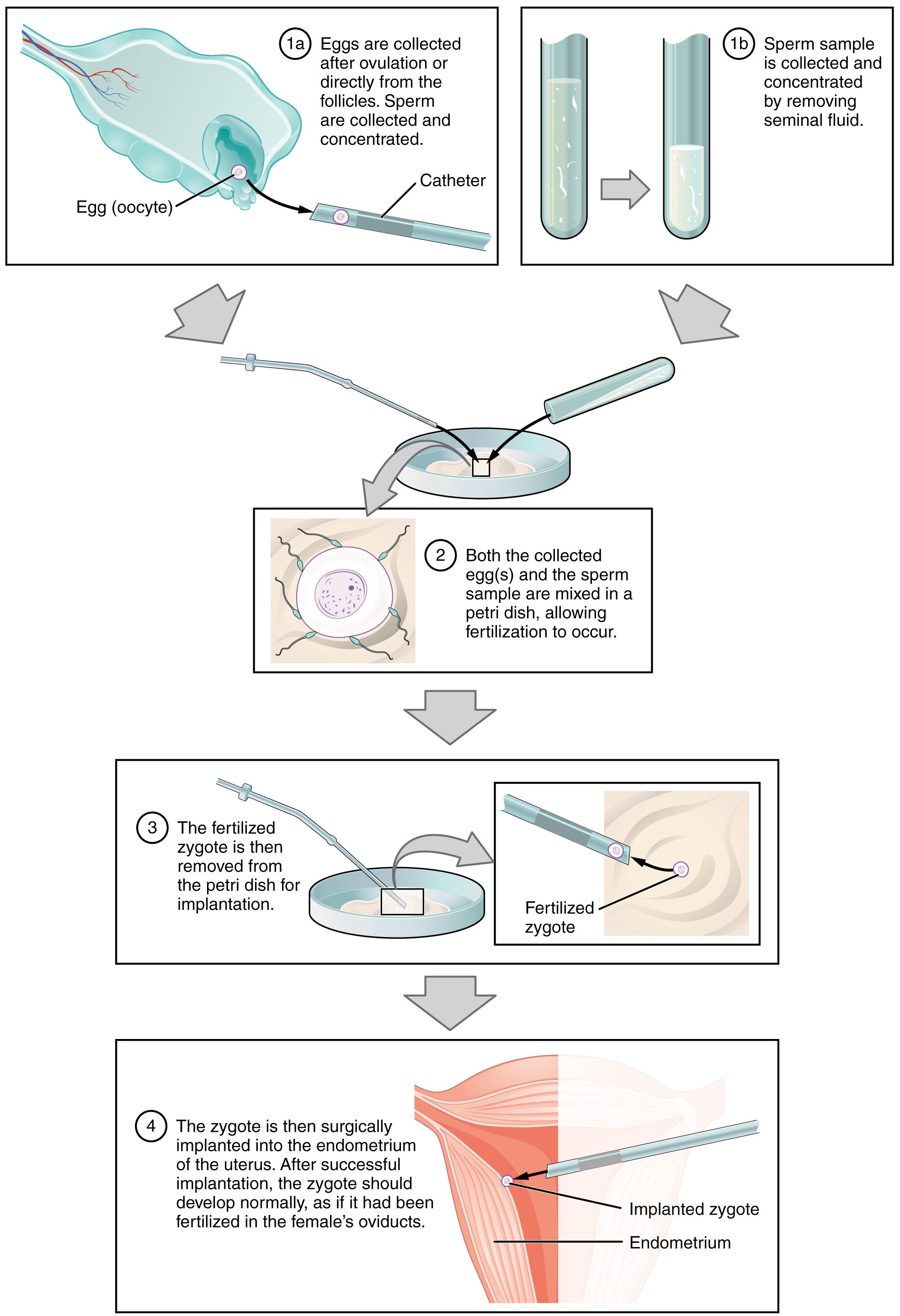 Fertilization · Anatomy and Physiology