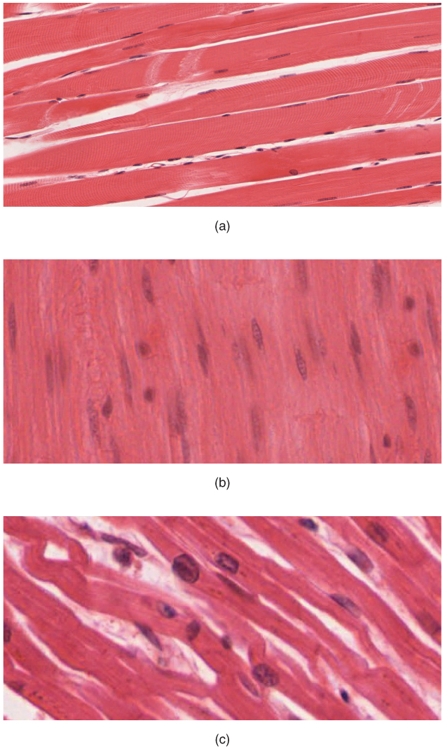 muscle tissue report Epithelial tissue pre-lab revised 9612 objectives: 1  recall that there are four types of tissues: epithelial, connective, muscle and nerve.