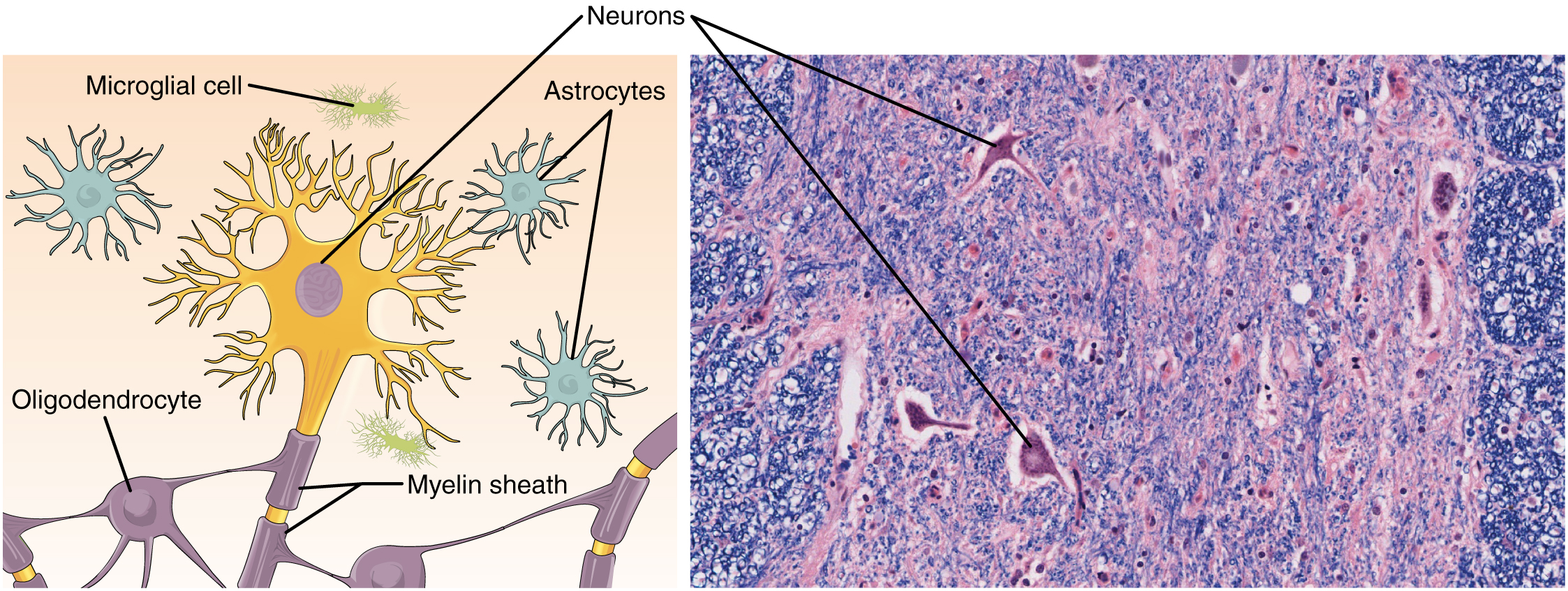 Nervous tissue mediates perception and response anatomy and part a of this diagram shows various types of nerve cells the largest cell is ccuart Choice Image