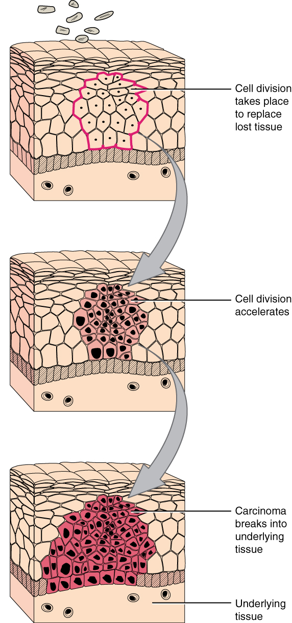 note the change in cell size, nucleus size, and organization in the tissue