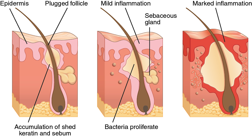 Acne Is A Result Of Over Productive Sebaceous Glands Which Leads To Formation Blackheads And Inflammation The Skin