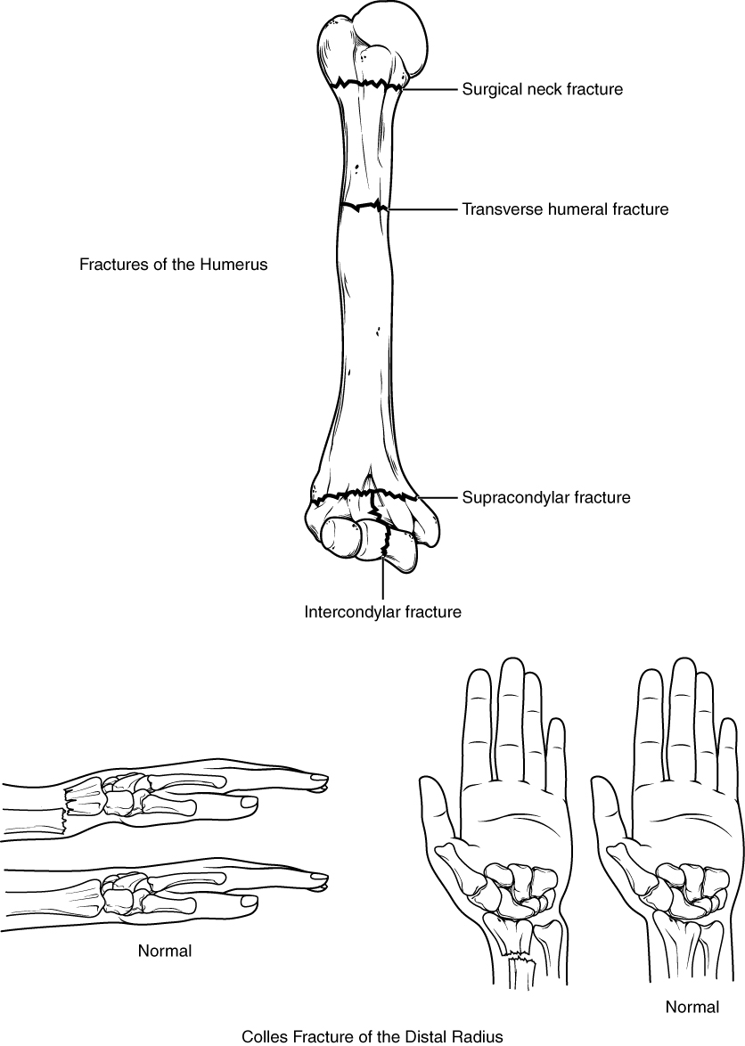 Anatomy of the Upper Limb: Hand Joint | Online Medical Library