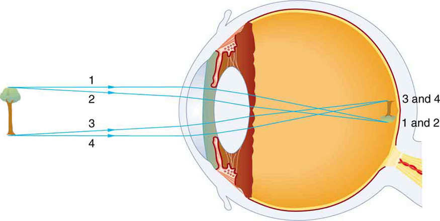 Physics of the eye physics ray diagram in the picture shows the internal structure of an eye and a tree that ccuart Gallery