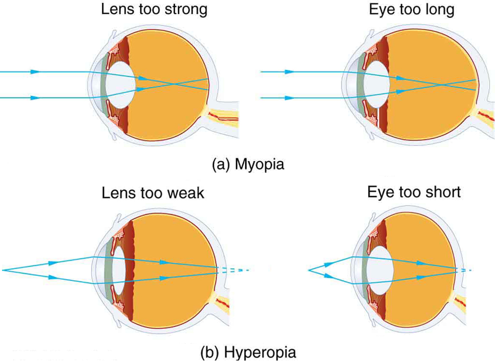 Vision correction physics part a shows two figures of cross sectional area of eye depicting myopia in ccuart Gallery