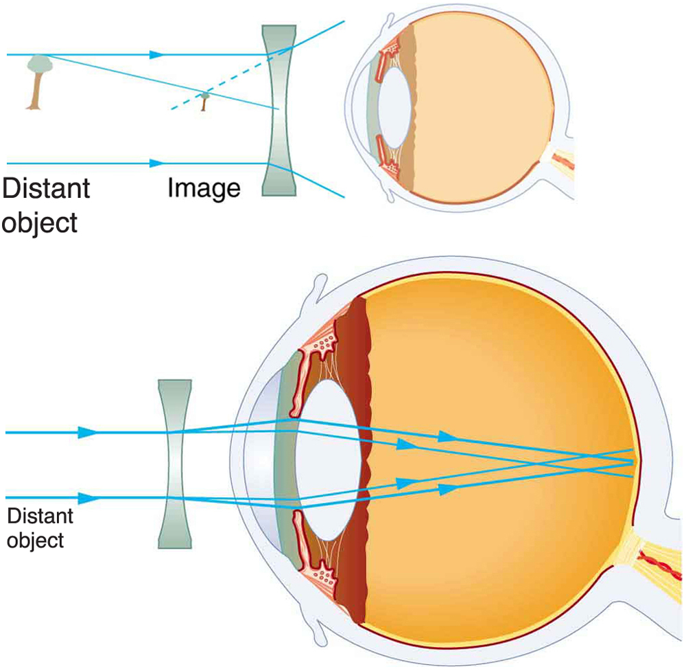 Vision correction physics two illustrations of cross sectional view of an eye are shown in the first correction of nearsightedness requires a diverging lens pooptronica