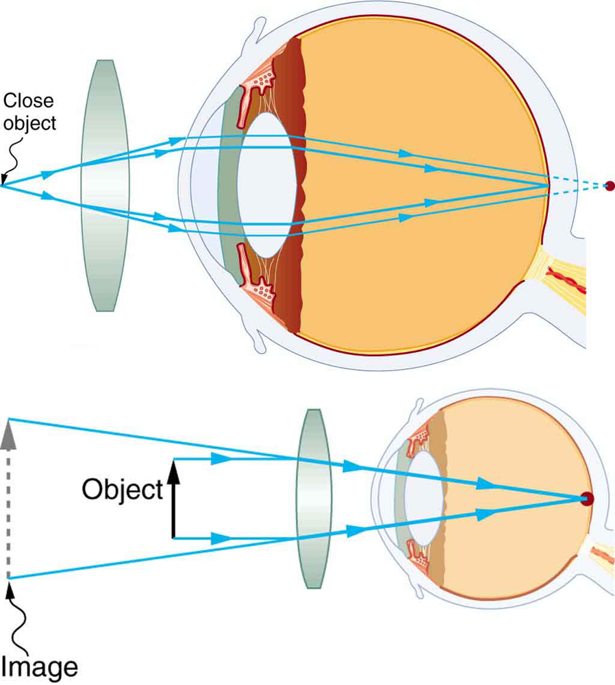 Vision correction physics two illustrations of a cross sectional view of an eye are shown in the ccuart Gallery